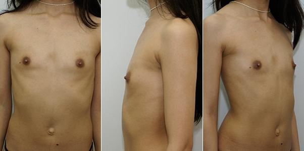 Увеличение груди операция отзывы форум