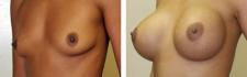 Эдуард Шихирман. Увеличение груди