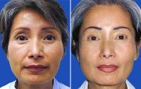 Пластика лица у азиатов
