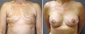 Реконструкция груди с использованием TRAM-лоскута