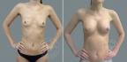 Эндоскопическое аксиллярное увеличение груди