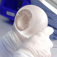 vybor_grudnyh_implantov