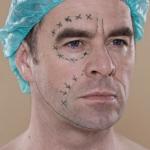 Насколько пластическая хирургия популярна среди мужчин