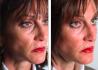 Пациентка доктора Абрамова до и после безоперационной подтяжки лица методом липолифтинга