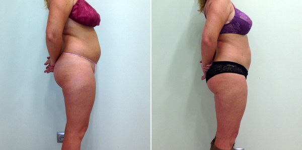 Фото до и после RF-липосакции у Светланы Пшонкиной