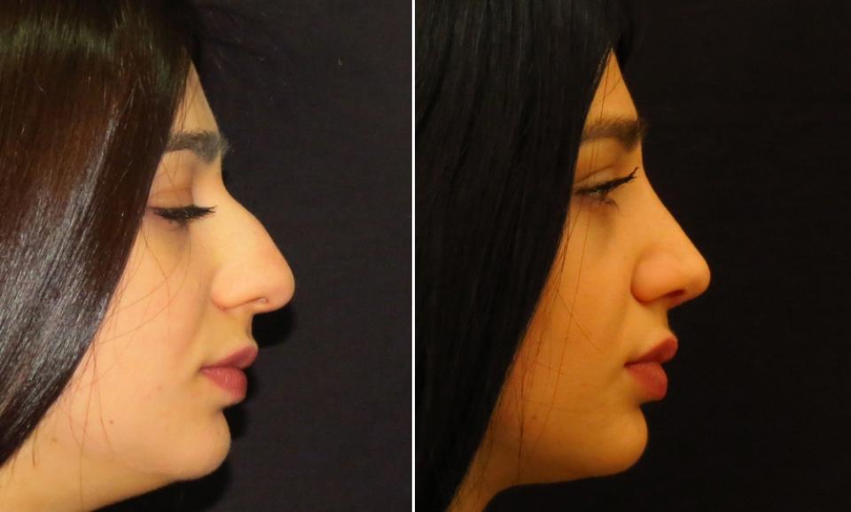 Как сделать себе нос с горбинкой 150