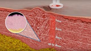 Воздействие лазерного аппарата UltraPulse CO2