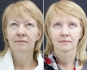 Галина до операции и спустя 13 дней после блефаропластики