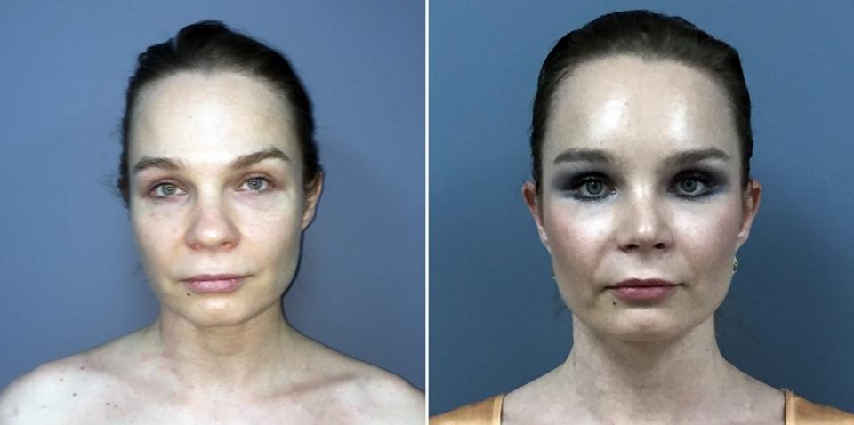 Пациентка Светланы Пшонкиной до и после омоложения лица