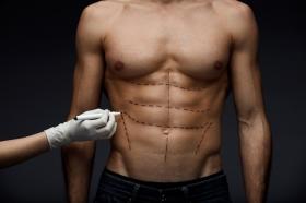 Мужская пластическая хирургия