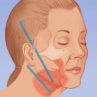 Подтяжка лица эндотинами