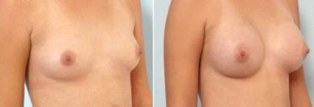 До и после увеличения груди у пластического хирурга Галины Хрущ