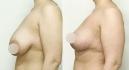 Фото до и после маммолпастики по методу Natural Beauty доктора Вардана Аршакяна