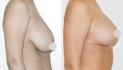 Фото до и после пластики груди по методу Natural Beauty у пластического хирурга Вардана Аршакяна