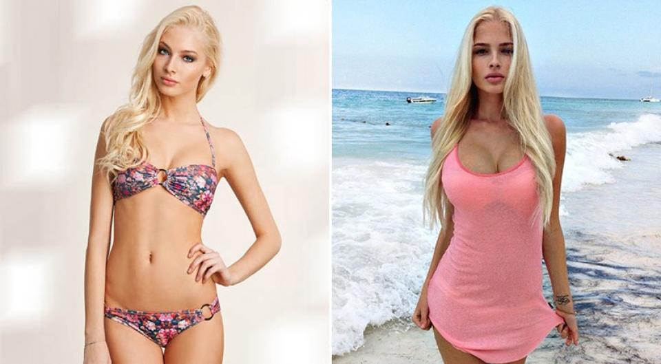 Алена Шишкова до и после увеличения груди