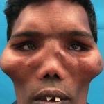 В Индии прооперировали человека с