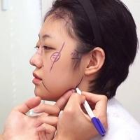 Китайские туристы чаще всех жалуются на корейских хирургов