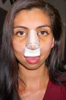 Пластика носа неизбежно влечет появление синяков