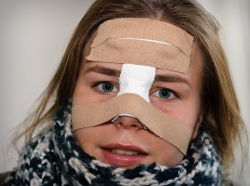 Ринопластика после травмы носа