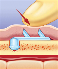 Техника установки эндотинов