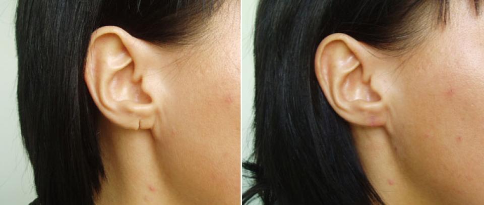 Разорванная мочка уха