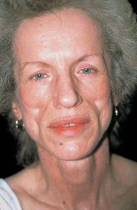Почему возникает липодистрофия?