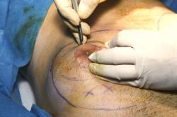 Пластическая операция при гинекомастии у мужчин