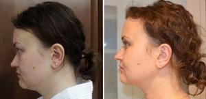 Фото до и после липомоделирования шейно-подбородочной зоны