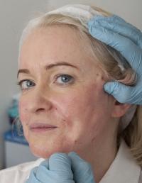 Пластические операции для пожилых людей