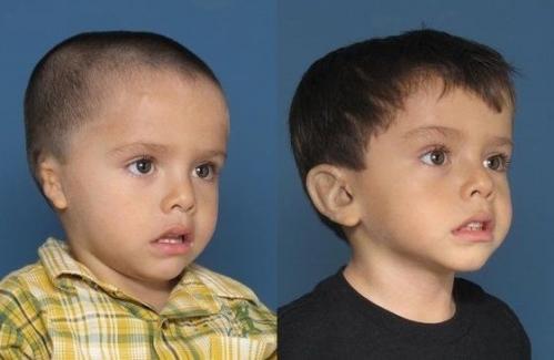 Пластические операции для детей