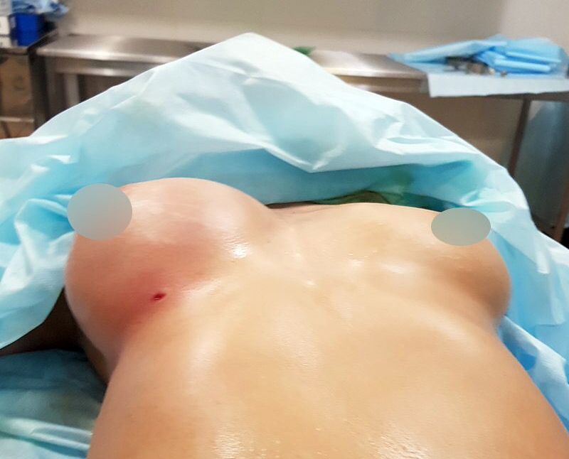 Липофилинг груди Пенаев