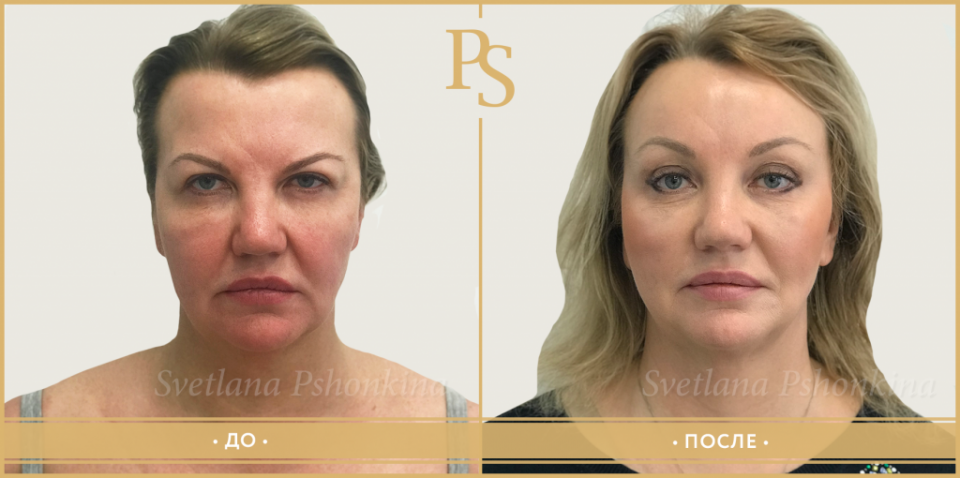 Фото до и после операции Визаж Лифт у доктора Светланы Пшонкиной