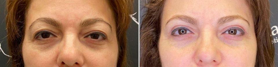Фото пациентки до и после пластики век у доктора Пайтяна