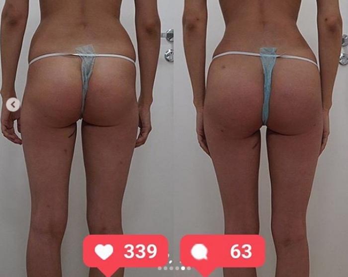 Фото пациентки доктора Пенаева до и после Vaser-липомоделирования