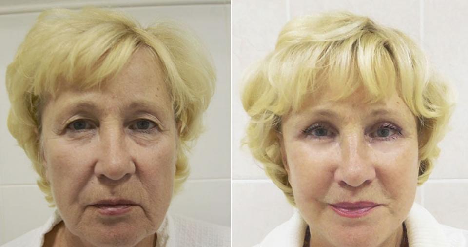 Пациентка до и после фейслифтинга у пластического хирурга Ольги Ованесовой