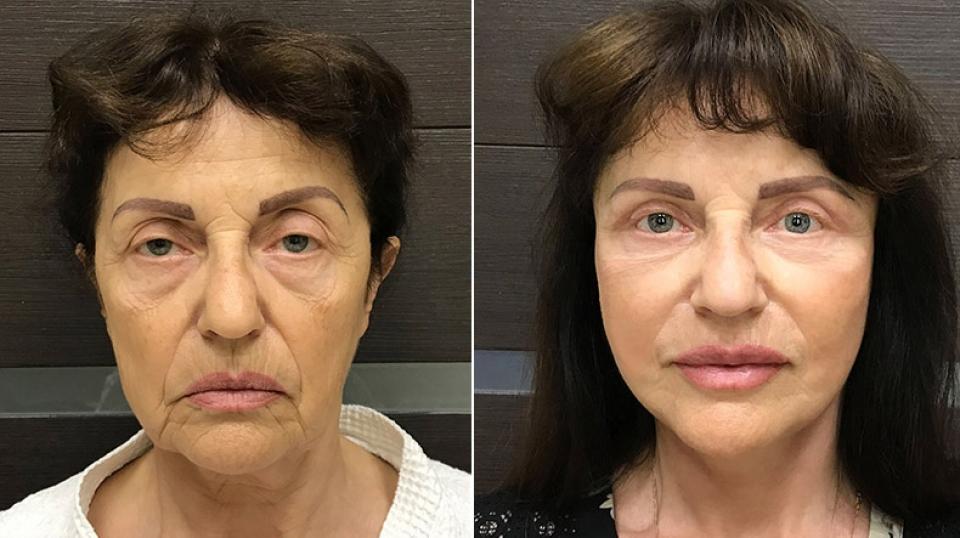 Пациентка до и после фейслифтинга у хирурга Ольги Ованесовой