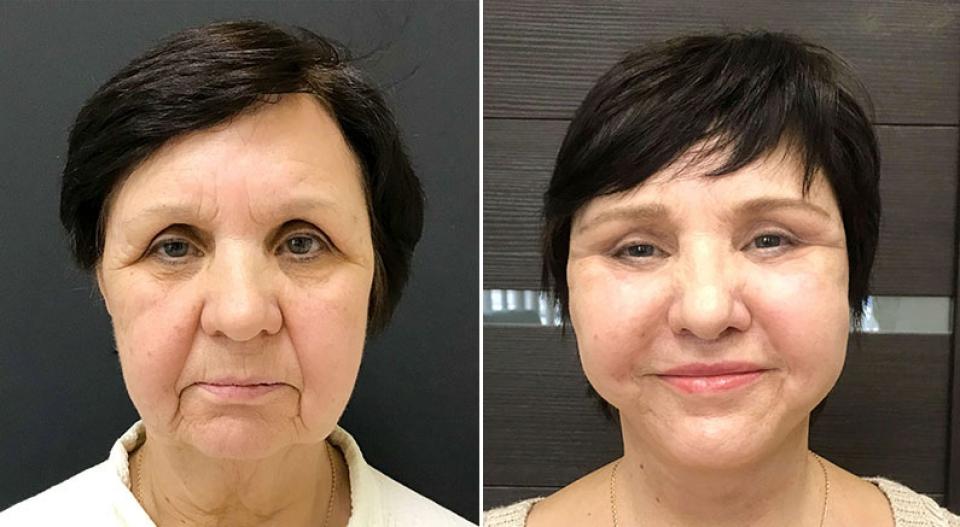 Пациентка до и после фейслифтинга у Ольги Ованесовой
