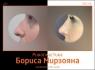 Борис Мирзоян. Фото до и после пластики носа