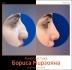 Борис Мирзоян. Фото до и после ринопластики