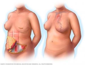 Реконструкция груди DIEP-лоскутом