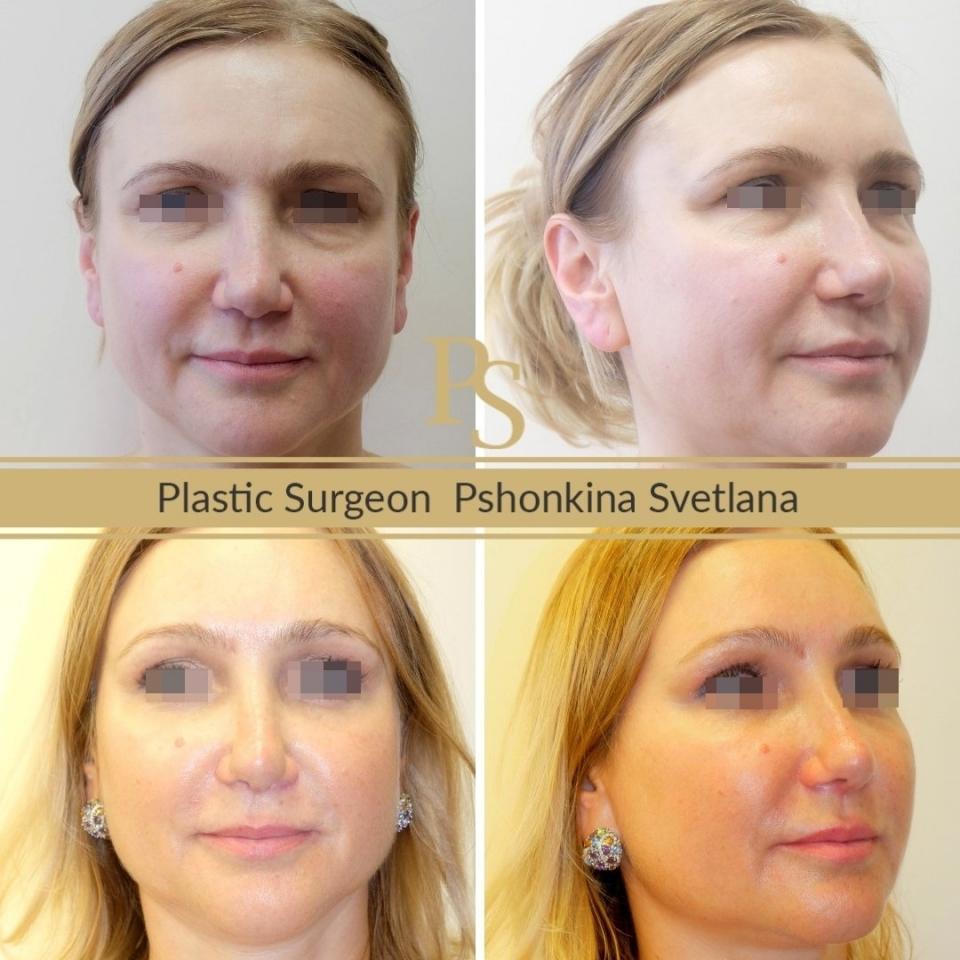 Фото пациента до и после Визаж Лифта лица у доктора Пшонкиной