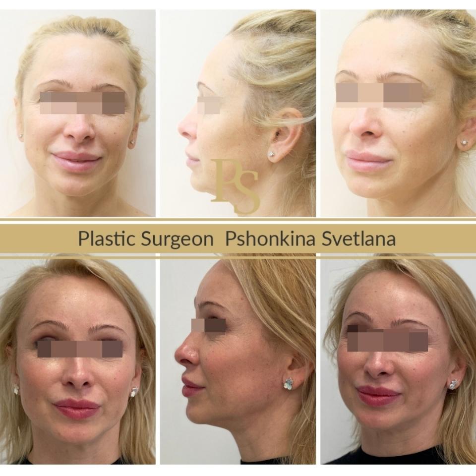 Фото пациента до и после эндолифтинга лица у доктора Пшонкиной
