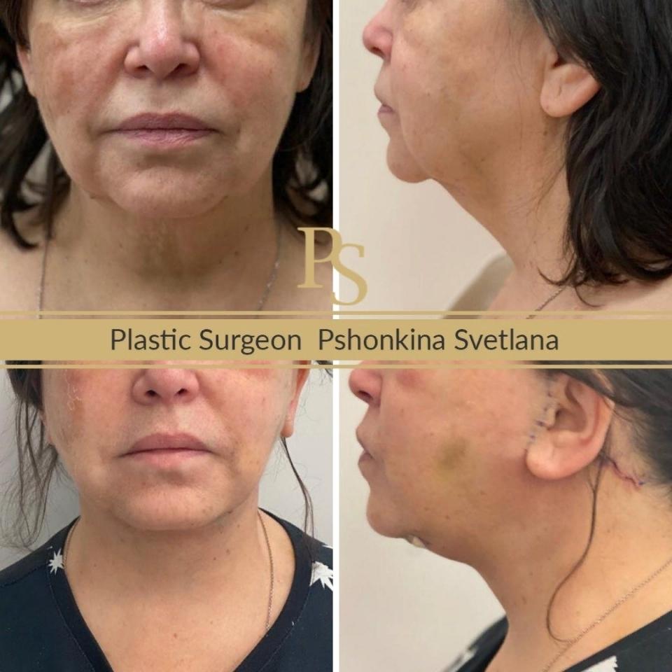Фото пациента до и после СМАС-лифтинга лица у доктора Пшонкиной
