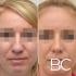 Пациентка до и после ринопластики у доктора Валерия Стайсупова