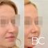 Пациентка до и после закрытой ринопластики у доктора Стайсупова