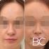 Пациентка до и после закрытой ринопластики у доктора Валерия Стайсупова