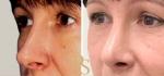 Фото до и после пластики носа у доктора Светланы Пшонкиной