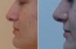 Фото до и после ринопластики у доктора Пшонкиной