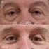 Пациент доктора Пенаева до и после блефаропластики