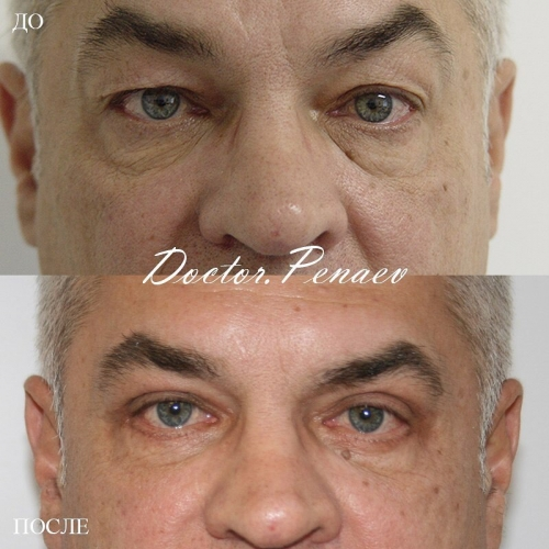 Пациент доктора Пенаева после блефаропластики